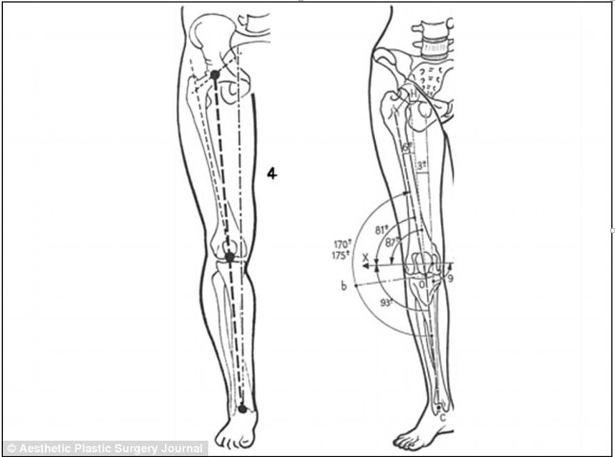 理想の脚構造